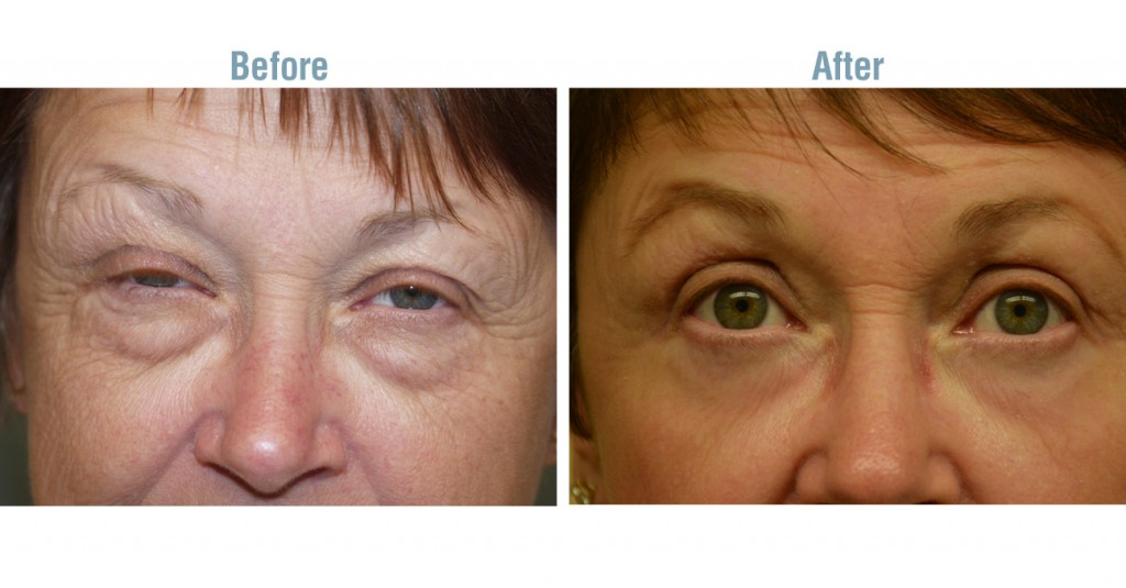 Discussion on this topic: What Is Blepharoplasty, what-is-blepharoplasty/
