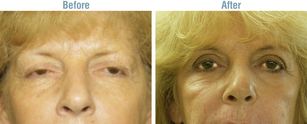 Eye Surgery Before and After